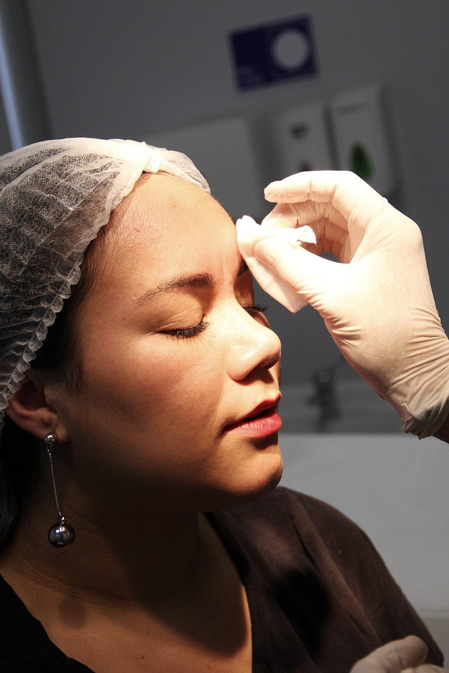 Botox clinica symmetria - santiago chile